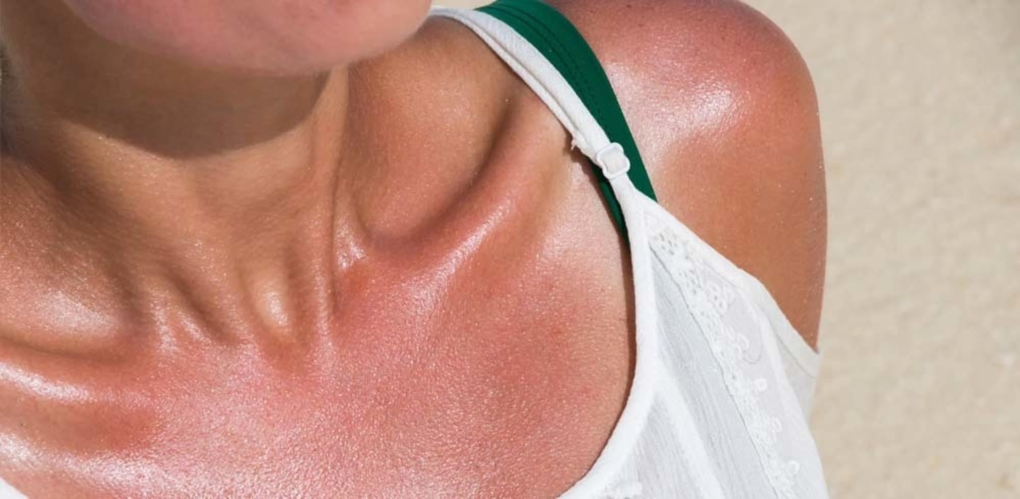 How many sunburns does it take to get skin cancer? - MoleMap