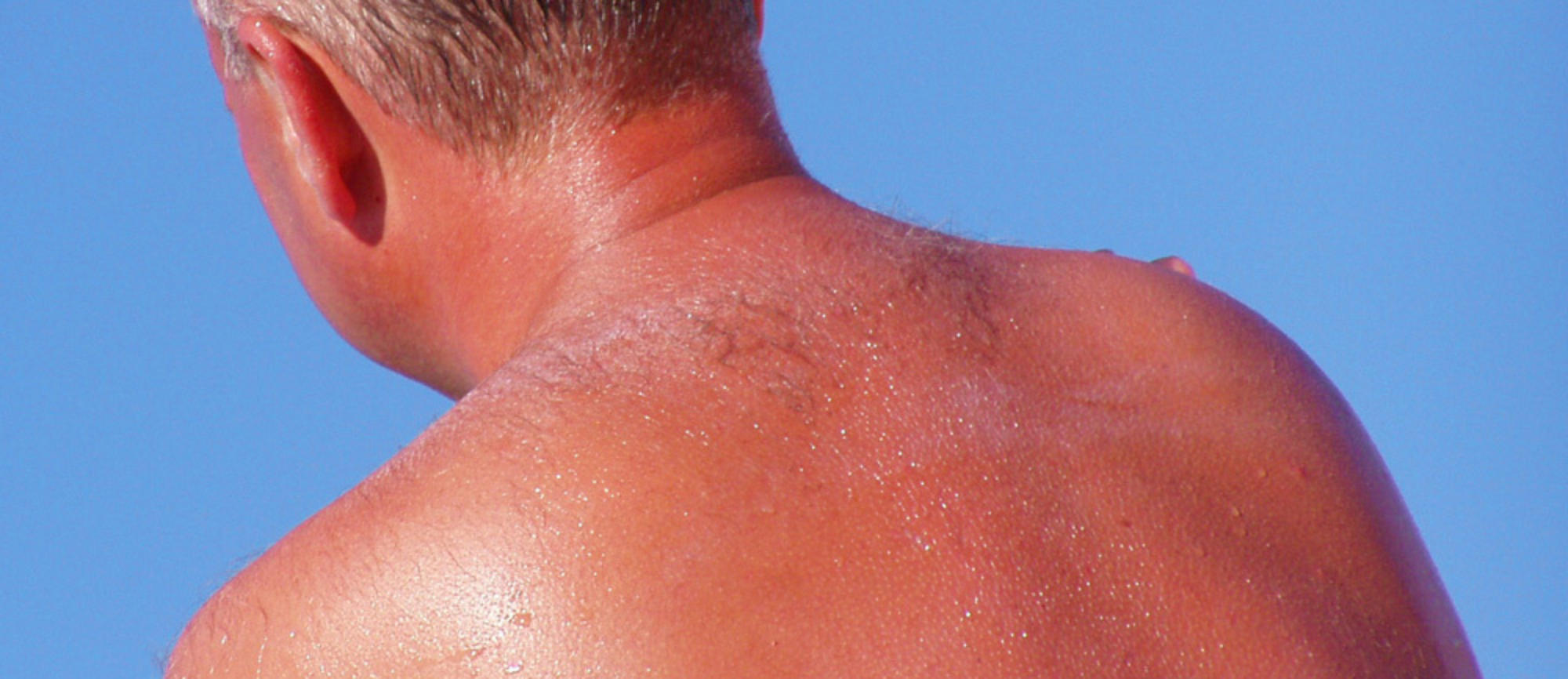How Many Sunburns Does It Take To Get Skin Cancer Molemap
