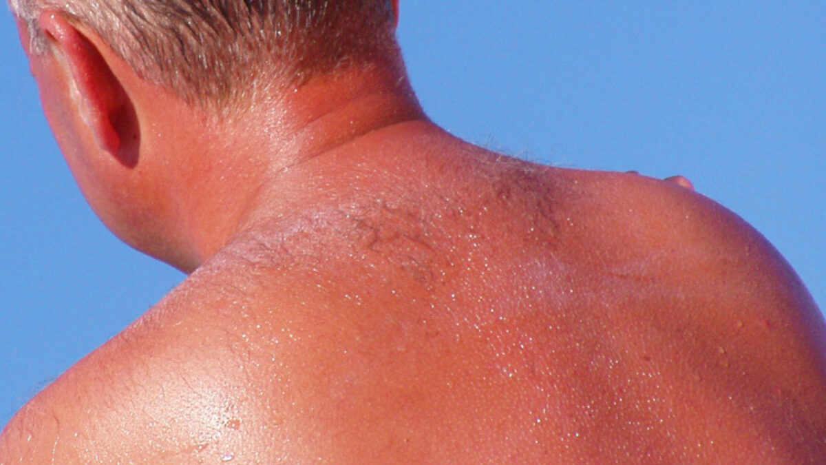 Discover The 7 Risk Factors Of Skin Cancer Molemap